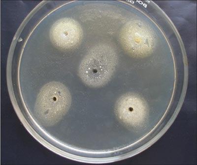 мalassezia furfur