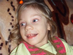 девочка с нарушением развития