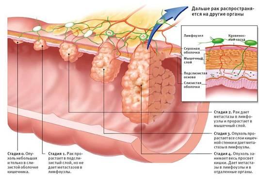Развитие рака двенадцатиперстной кишки