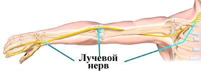 Невропатія верхніх кінцівок
