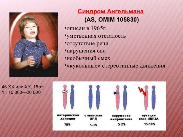 История открытия синдрома петрушки