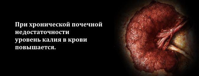 kalij-v-krovi-i-moche