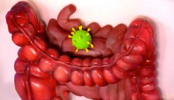Возбудитель ротавирусной инекции.