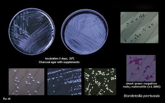 колонии Bordetella pertussis