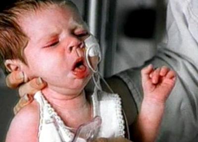 симптомом коклюша у детей