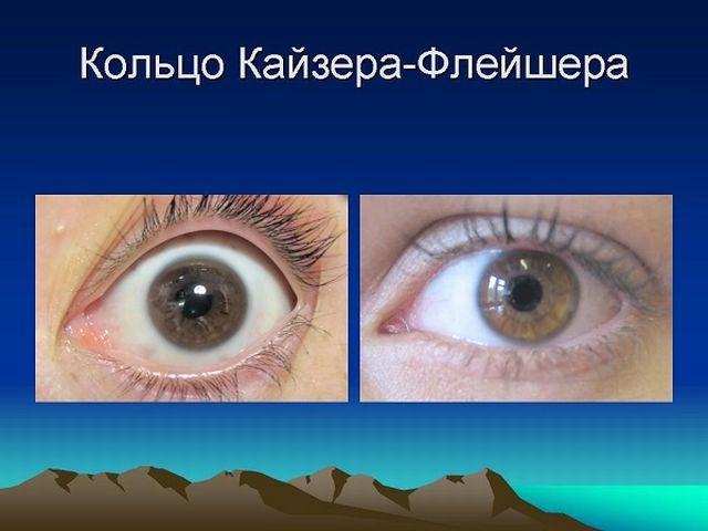 кольцо Кайзера-Фляйшера