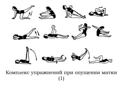 kompleks_uprazhneniy_pri_opushchenii_matki_1