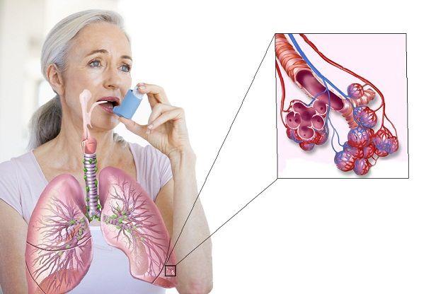 Осложнения при бронхиальной астме