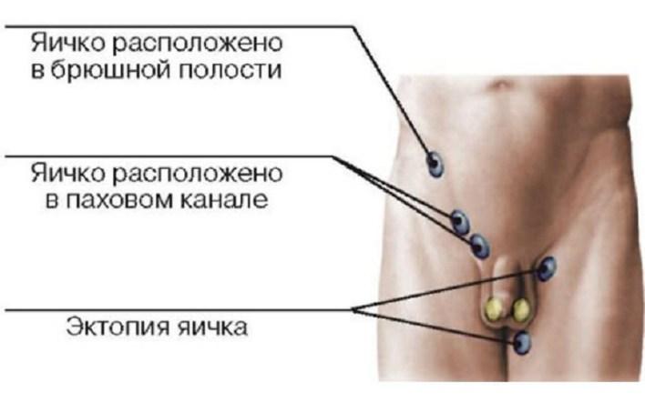 Лівобічний крипторхізм: особливості та методи операцій