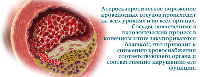 lipoproteiny-nizkoj-plotnosti-ploxoj-xolesterol