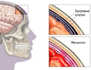 воспаленные оболочки мозга
