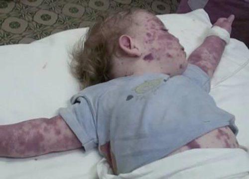 Фото ребенка при менингокцемии.