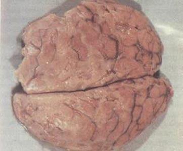 Гнойный выпот на больших полушариях головного мозга.