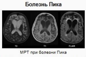 МРТ при болезни Пика
