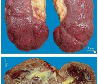 Нефросклероз почек