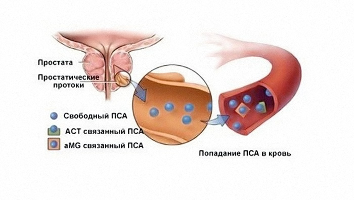 Норма ПСА після операції з видалення раку простати