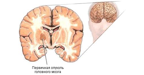 opuhol-mozga
