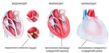 Болезни сердца как осложнение после бронхита