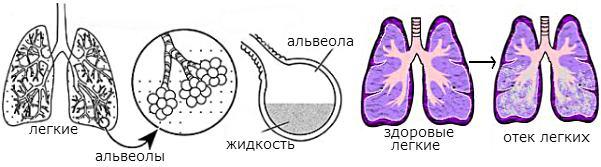 развития отека легких
