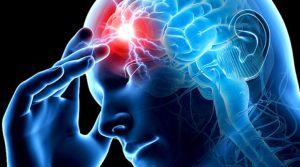 терапия инсульта
