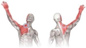 плексит плечевого сустава