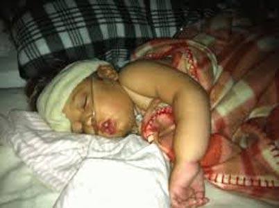 Фото больного ребенка.