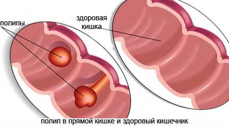 Симптомы полипов прямой кишки