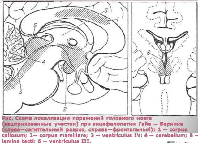 нарушения функций мозга