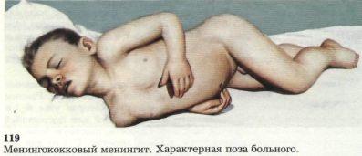 poza-pri-meningite