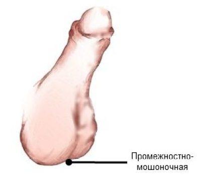 promezhnostno-moshonochnaya
