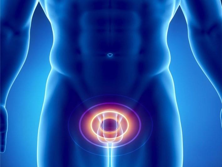 Простаторея: причини, симптоми, лікування