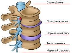 protruziya[1]