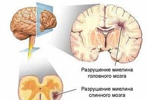 демиелинизирующее заболевание