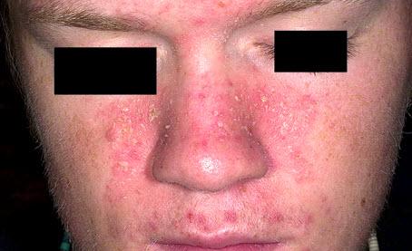 Симптомы себорейного дерматита