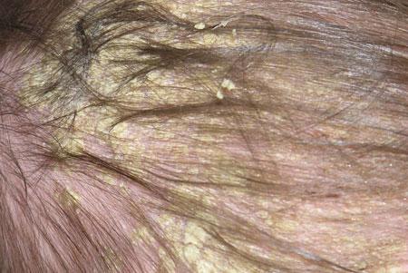 Развитие себореи на голове, фото 4