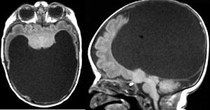 голопрозэнцефалия головного мозга