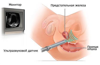 Схема УЗИ