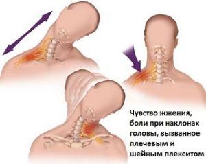 симтпомы плечевого плексита