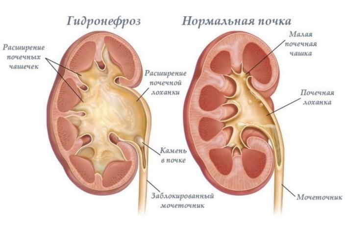 Болить нирка з правого боку, основні симптоми.