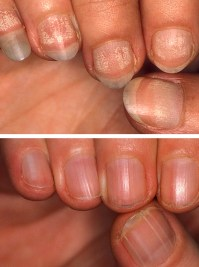 simptomy-totalnoj-alopecii