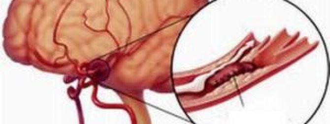 Патологические процессы в кровеносной системе