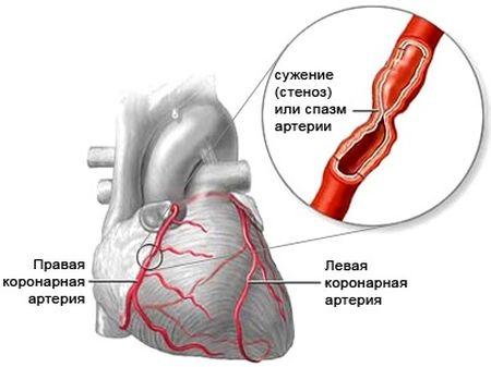 spazm-arterii