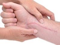strataderm-scar-therapy-gel