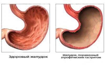 желудок пораженный гастритом
