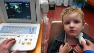 Гипотиреоз у детей: симптомы и лечение