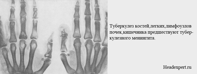 Туберкулез костей, почек, кишечника обычно предшествуют туберкулезного менингита