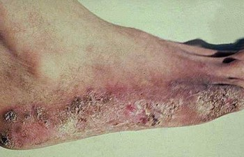 бородавчатый туберкулез кожи стопы.