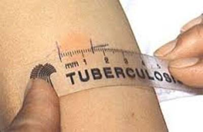 На фото замер папулы, которая появилась через 72 часа после введения туберкулина.