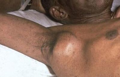 увеличенный лимфатический узел при туляремии
