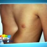 Впалой грудной клетки у мужчин